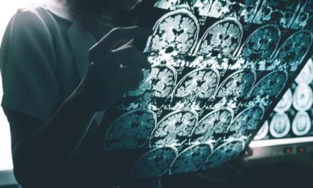 Τεχνητή νοημοσύνη προβλέπει χρόνια πριν το Αλτσχάιμερ βάσει ανθρώπινης ομιλίας